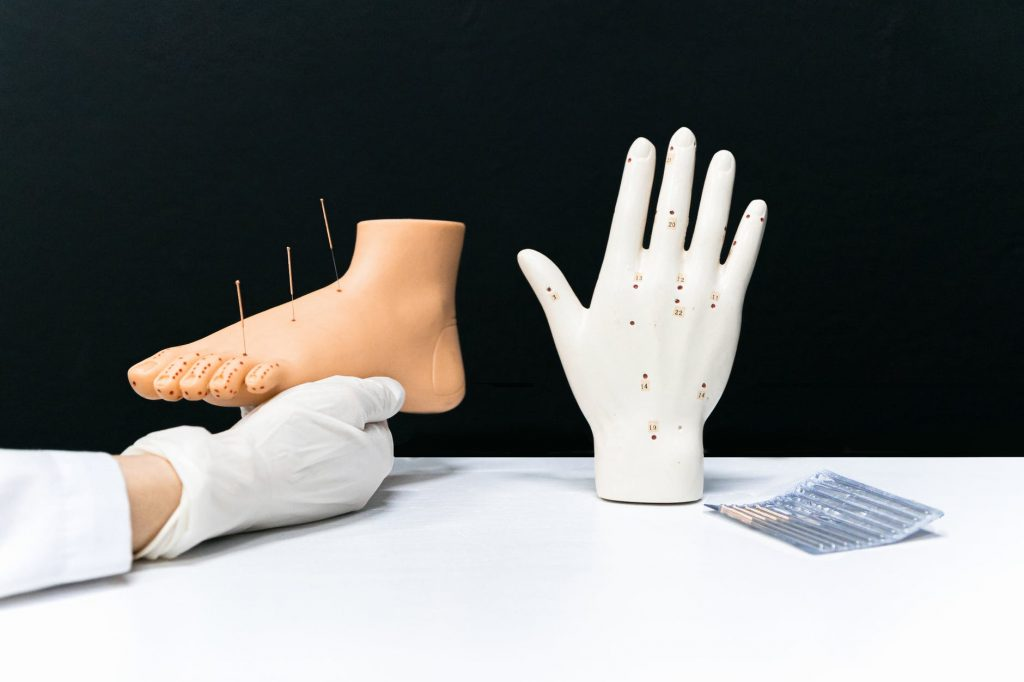 foot and hand acupuncture